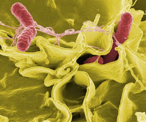 This is an amazing electron photo of Salmonella bacteria invading the human cell.